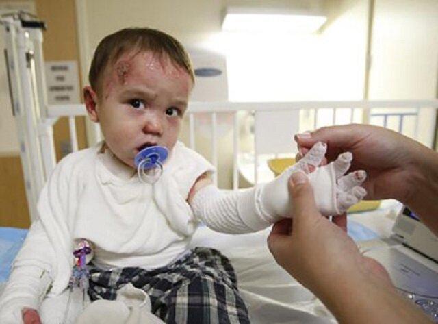 بچه هایی که با تحریم ها درد می کشند و می میرند